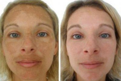 donna con macchie pelle prima e dopo