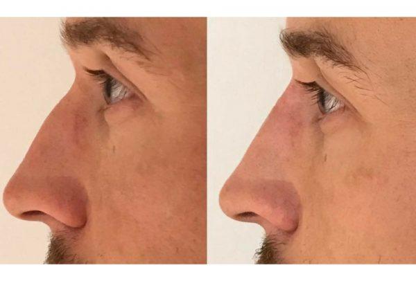 uomo naso rifatto prima e dopo