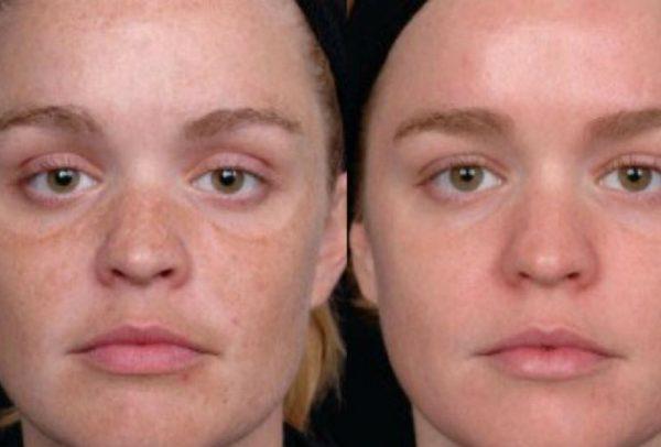 donna prima e dopo del peeling chimico