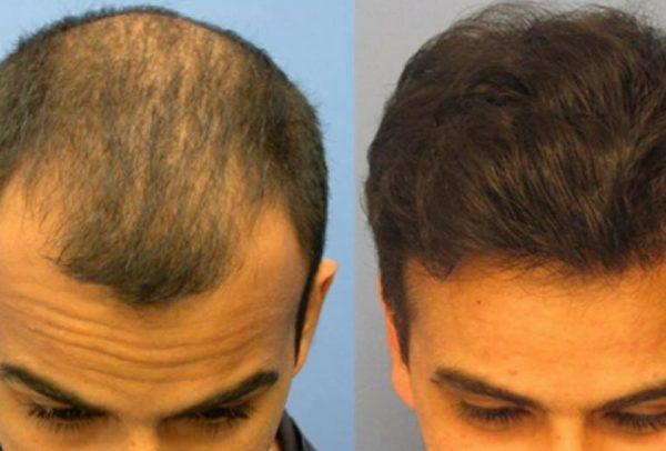 uomo senza capelli prima e con capelli dopo