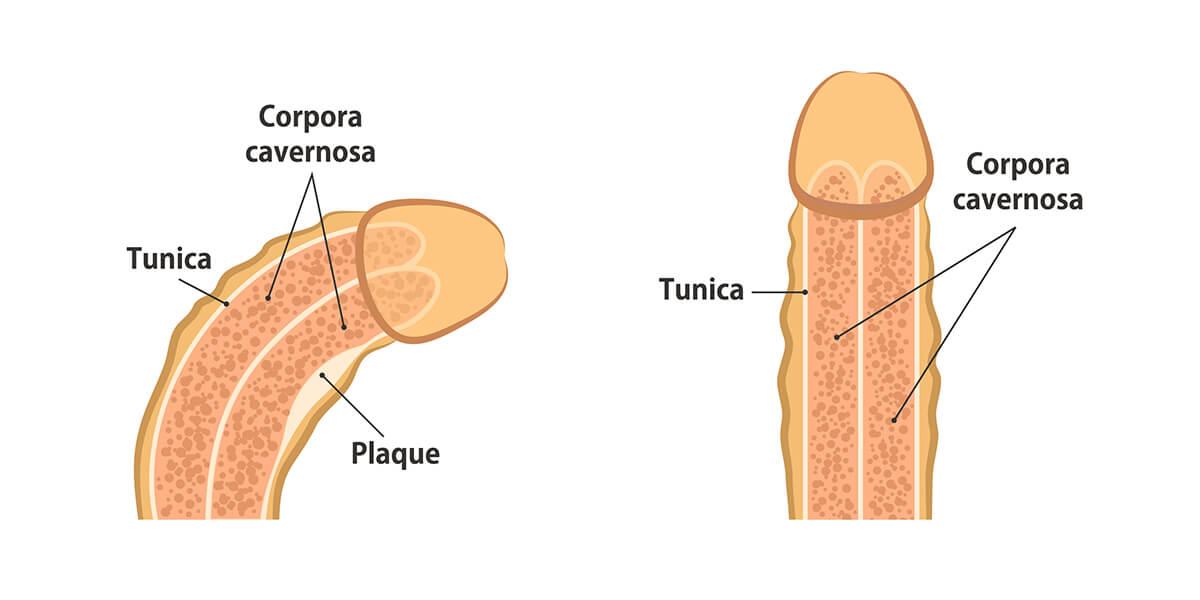 patologia pene