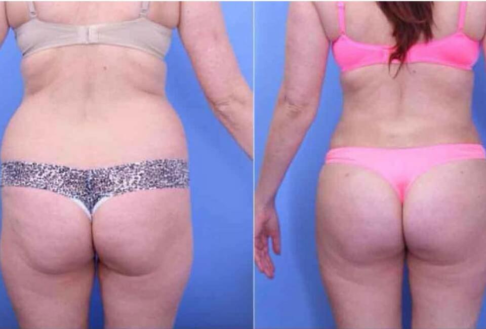 corpo prima e dopo dimagrimento