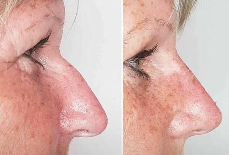 donna naso rifatto prima e dopo