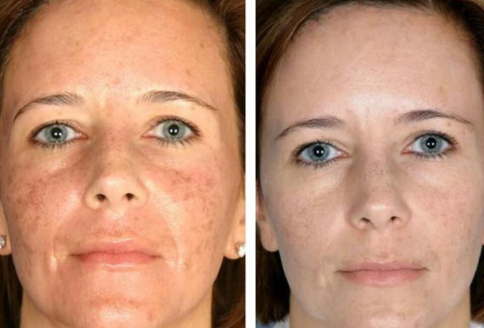 donna dopo trattamento peeling