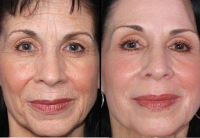 donna ringiovanimento viso