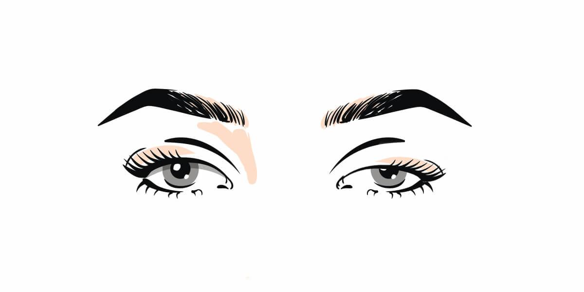 Blefaroplastica occhi donna