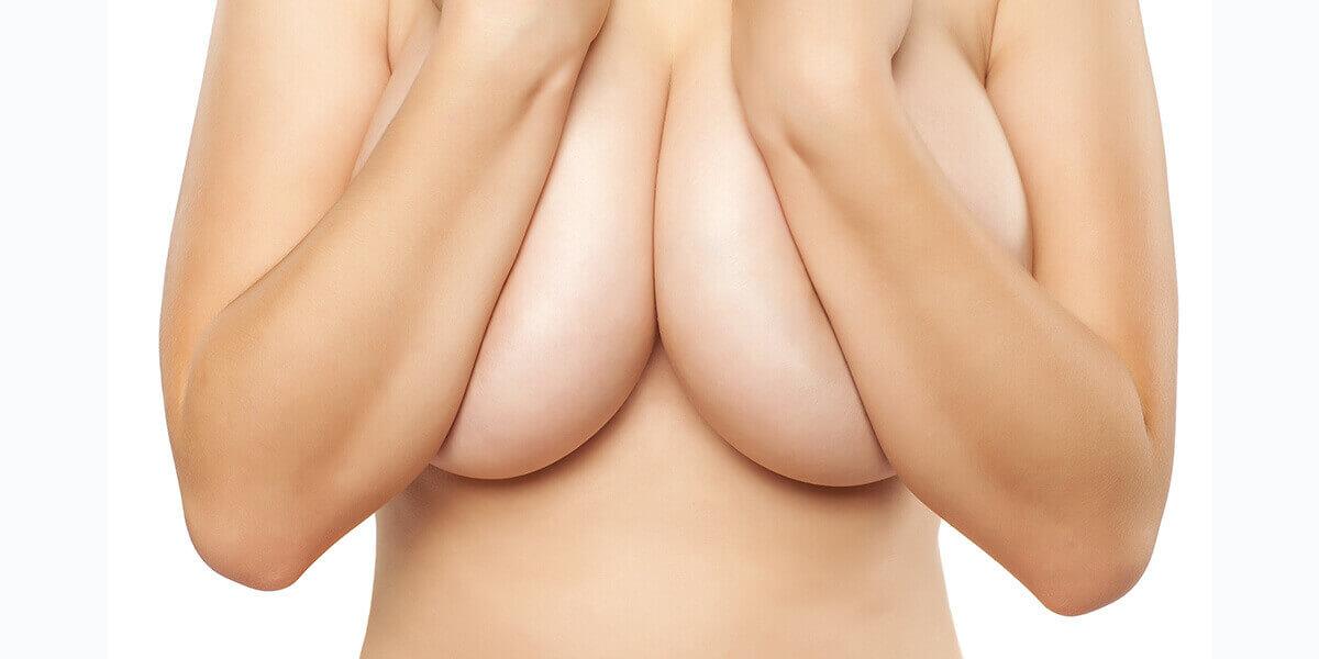 donna seno grande riduzione