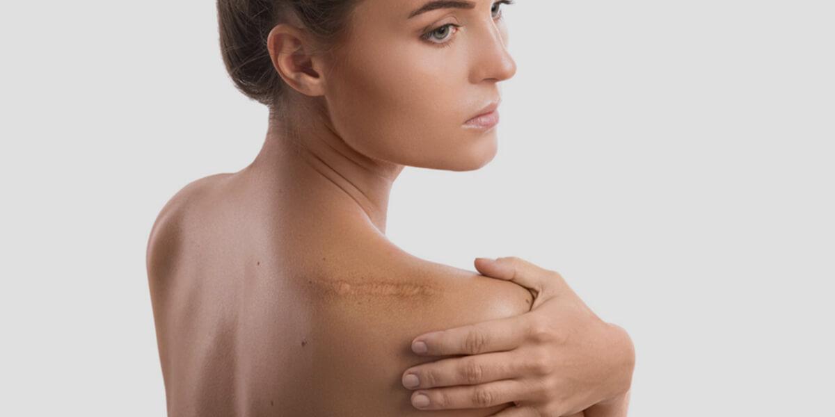cicatrice schiena