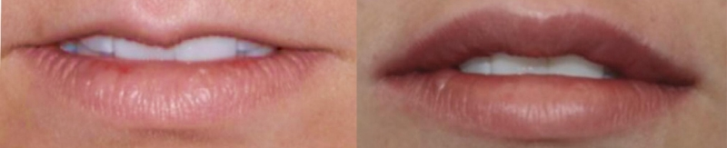 labbra donna prima e dopo intervento