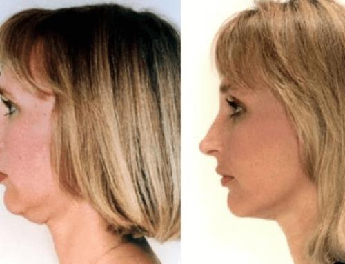 Intralipoterapia per eliminare il doppio mento