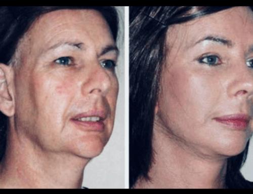 Prima e dopo Lifting Chirurgico