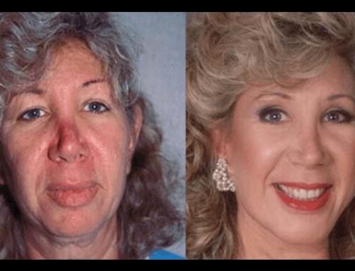 Lifting Chirurgico Prima e Dopo
