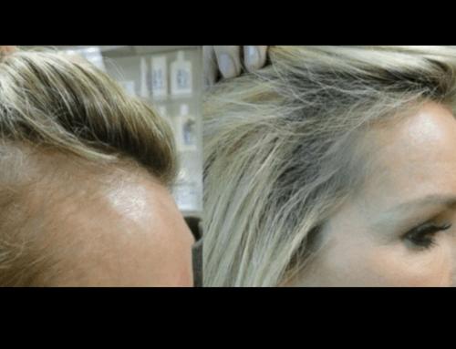 PRP capelli donna prima e dopo il trattamento