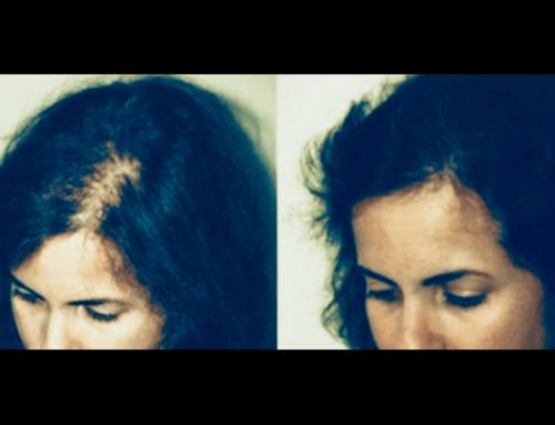 Trattamento caduta capelli donna con PRP