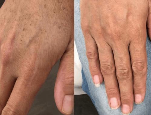 Peeling Chimico per eliminare macchie della pelle