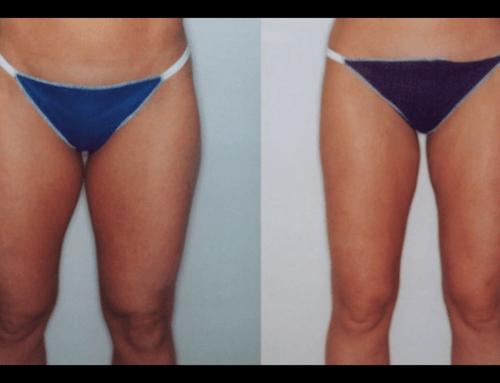 Prima e Dopo Terapia anticellulite