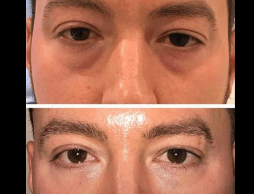 Trisitebolus prima e dopo