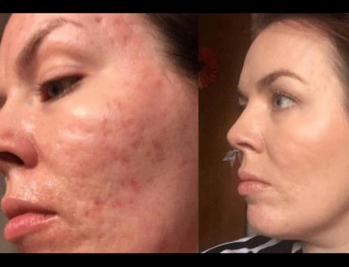 Peeling chimico contro cicatrici acne