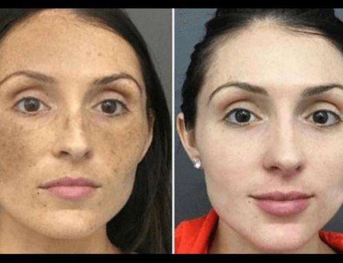 Rimozione macchie della pelle con Laser Ibrido