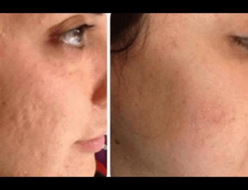 PRP dermatologico viso
