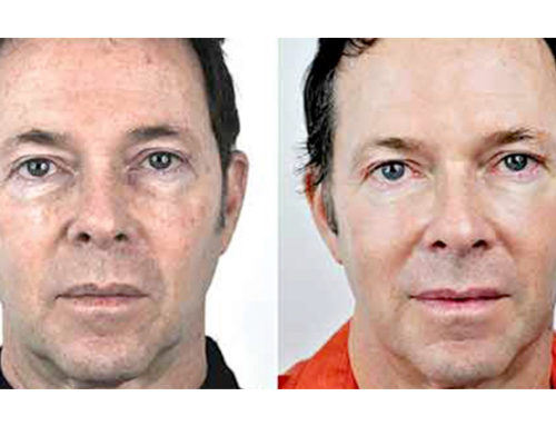 Rimozione macchie viso con laser